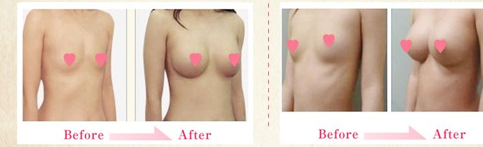 Breast Actives result transformation
